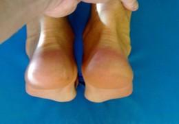 Symetria ciała po zabiegu