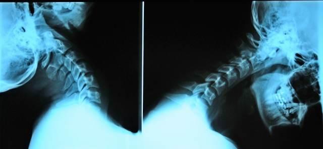 zdjęcia rtg diagnostyka w leczeniu kęgów szyjnych kręgosłupa