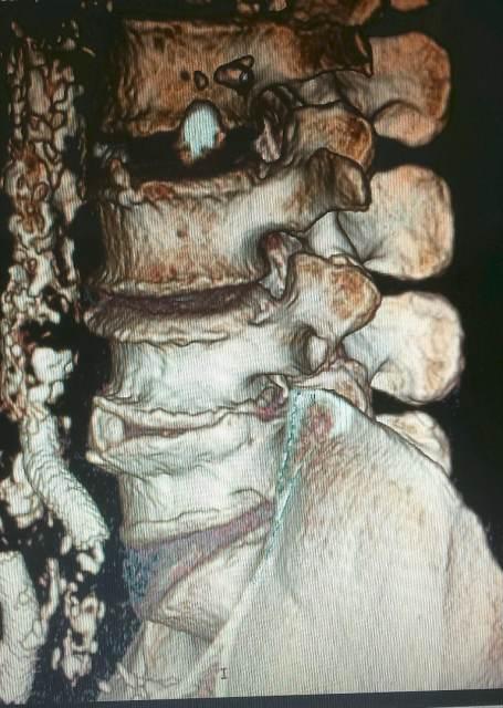 kręgarstwo chiropraktyka kręgosłupa w Poznańiu