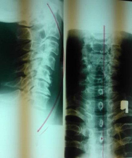 rehabilitacja przy skrzywieniu kręgosłupa szyjnego