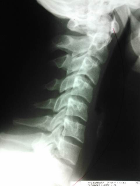 zniesienie lordozy szyjnej kręgosłupa dyskopatia szyjna